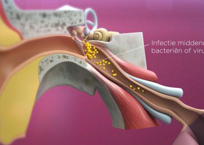 infectie_middenoor